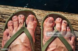 Ugly Feet Meme - images of ugly feet stock photos and pictures getty images