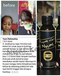 Minyak Kemiri Untuk Anak new testimoni minyak kemiri asli nyai distributor minyak kemiri