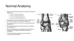 Tibiofibular Ligament Injury Ankle Syndesmosis Normal Anatomy Distal Tibiofibular Syndesmosis