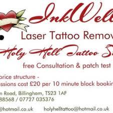 inkwells laser tattoo removal tattoo removal 39 station road