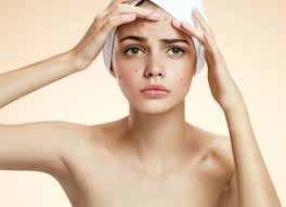 Face Mapping Acne What Are Your Pimples Trying To Tell You Cleo Malaysia