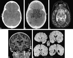Ct Anatomy Of Brain Ppt Central Brain Herniation Secondary To Juvenilediabetic