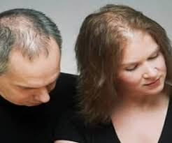 thinning hair in women on top of head cause of thinning hair on top of head