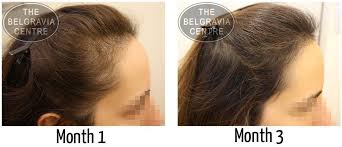 womans hair thinning on sides women s hair loss treatment success stories