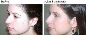 ipl intense pulsed light ipl treatment dallas skin rejuvenation dallas tx