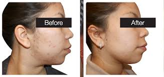 blue light for acne side effects acne treatments pittsford laser spa