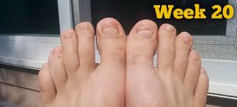 yellow nails toe nail fungus treatment best kerasal nail fungal photos 2017 u2013 blue maize