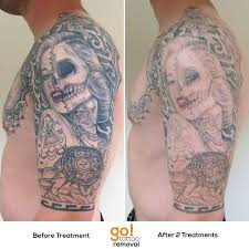 the 25 best half sleeve tattoo removal before and after ideas on