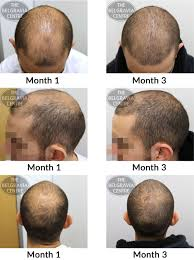 new treatments for hair loss best hair loss 2017