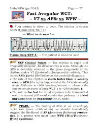 acls 2013 the acls arrhythmia pocket brain book grauer