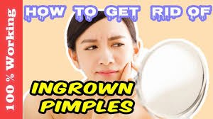 How To Remove Blind Pimple How To Get Rid Of Ingrown Pimples Overnight Fast Home Remedies