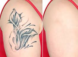 madison laser tattoo removal madison u0027s best tattoo removal