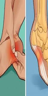 Planters Fasciitis Surgery by Recover From Plantar Fasciitis Surgery Plantar Fasciitis