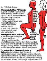 tilt table test pots postural orthostatic tachycardia syndrome lawyer deshaw trial lawyers