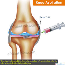 Tibiofibular Ligament Injury Knee Aspiration Everything You Need To Know