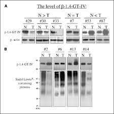 tumor β 1 4 galactosyltransferase iv overexpression is closely