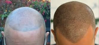 pics of scalp micropigmentation on people with long hair the difference between scalp micropigmentation hair tattoo