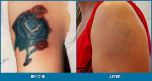 picosure tattoo removal cost laser tattoo removal cost denver co