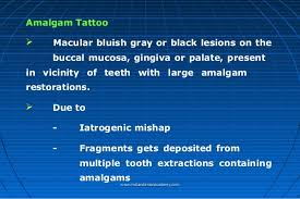 amalgam modified cosmetic dentistry courses