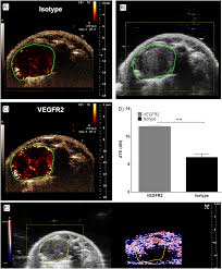 high resolution ultrasound and photoacoustic imaging of orthotopic