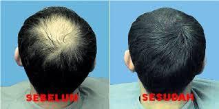 obat rambut penumbuh rambut botak mengatasi rambut rontok penumbuh rambut rontok botak hair tonicum alami dan permanen