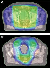 radiotherapy in patients with hiv current issues and review of