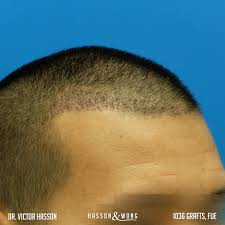 how thick is 1000 hair graft fue hair transplant timeline hasson wong