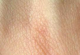 light patches on skin light patch of skin on doctors answer your questions