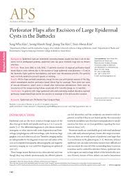 pilonidal cyst location perforator flaps after excision of large epidermal cysts in the