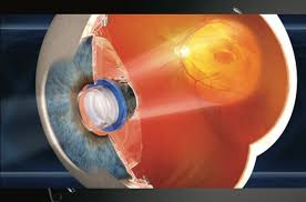 Legally Blind Test Miracle Medical Moment As Legally Blind Man Sees With Bionic Eye
