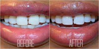 how to whiten your teeth with strawberries cliffy u0027s beauty shop