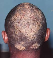 scalp fungus noninflammatory scalp fungus infect