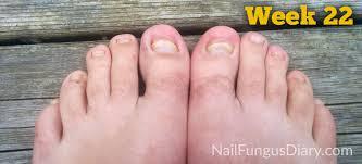 nail fungus update june 2015 nail fungus diary