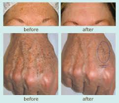 ipl intense pulsed light ipl intense pulsed light treatments what can they do for me