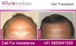 hair transplant costs in the philippines hair transplant surgery procedure hair transplantation hair