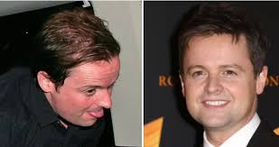 declan donnelly hair transplant hair transplant celebrities who have had
