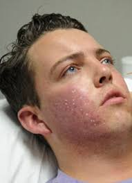 my skin buddy light therapy towie s diags had led light therapy to clear up acne daily mail online