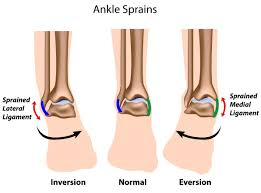 High Ankle Sprain Anatomy St Louis Podiatrist On How To Treat Ankle Sprains Eureka