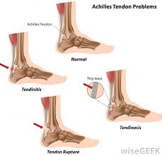 Foot Ligament Anatomy What Is The Difference Between A Ligament And A Tendon