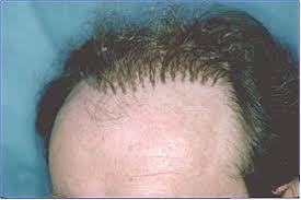 hair plugs for men hair plug removal graft excision bernstein medical