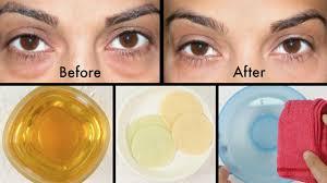 how to get rid of puffy eyes swollen eyelids u0026 dark circles