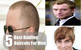 hair cuts for balding crown problem 5 best balding haircuts for men tips and hairstyles for balding