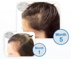 rogaine for women success stories what s the difference between belgravia minoxidil and rogaine for