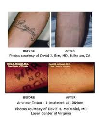 surgical excision tattoo removal photos tattoo world pinterest