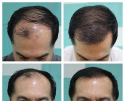 hair transplant costs in the philippines dhi philippines direct hair implantation hair loss clinic in