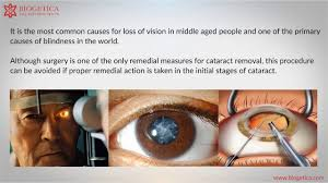 Can Cataracts Lead To Blindness Can Natural Cataract Treatments Cure Cataract Youtube