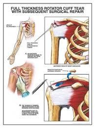 Anatomy Of Rotator Cuff Rotator Cuff Tears Physiopedia
