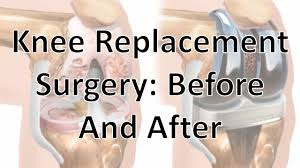 Diagram Of Knee Anatomy Knee Replacement Surgery Before And After Youtube