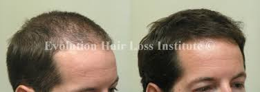 Hair Loss Cure For Women Before And After Hair Growth Treatment Photos