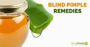 How To Remove Blind Pimple How To Get Rid Of A Blind Pimple